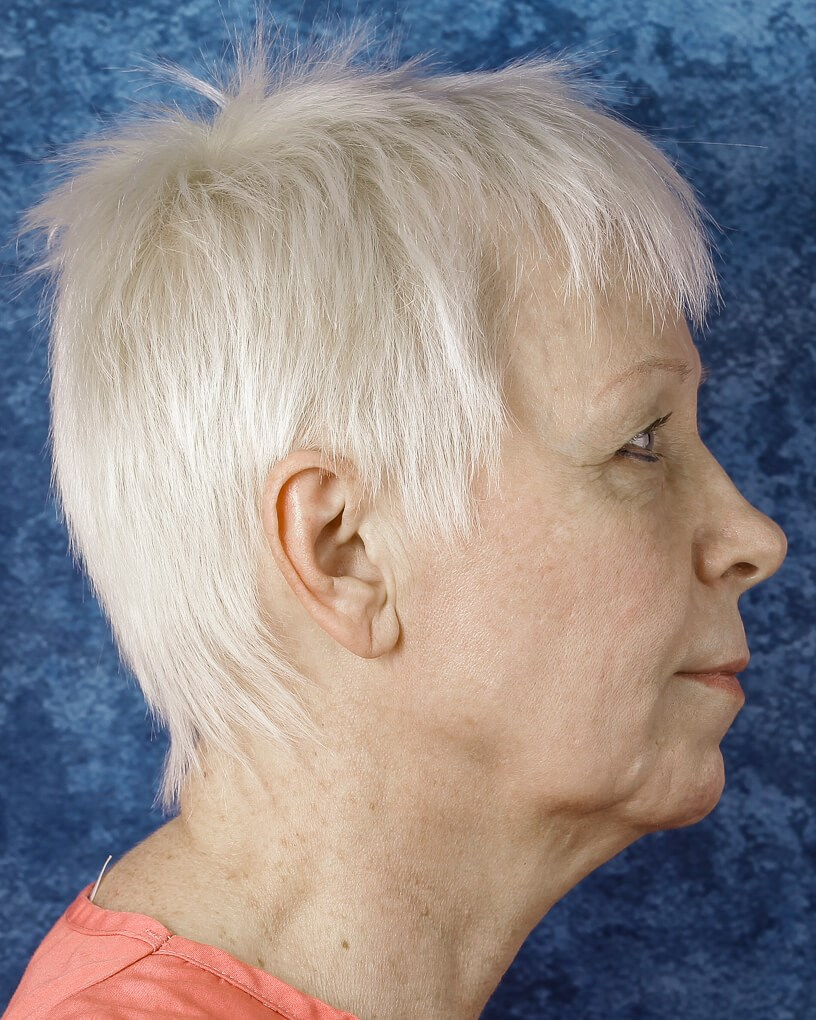 Side View of Lower Facelift Before