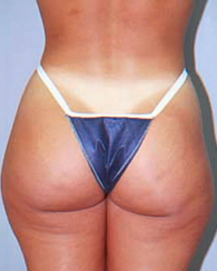 Posterior View Before