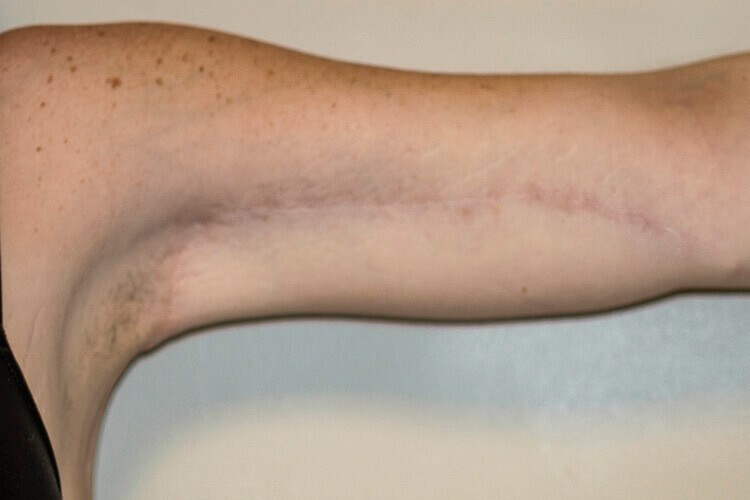 Left Arm, Anterior View After