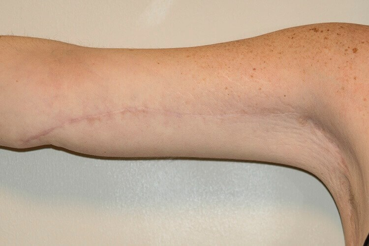 Right Arm, Anterior View After
