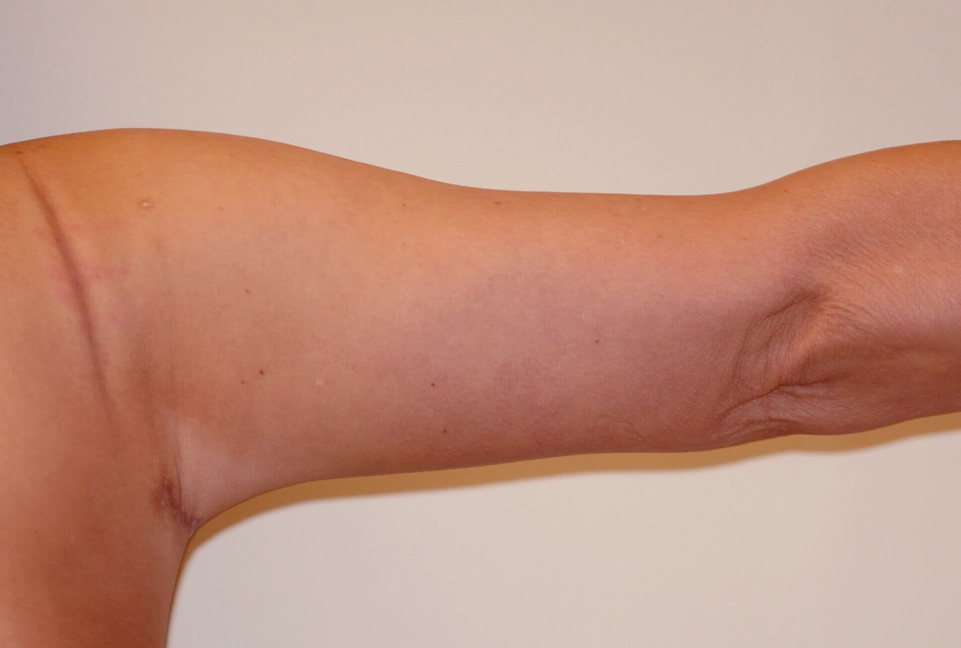 Right Arm, Posterior View After
