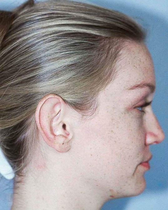 Otoplasty Side View Before