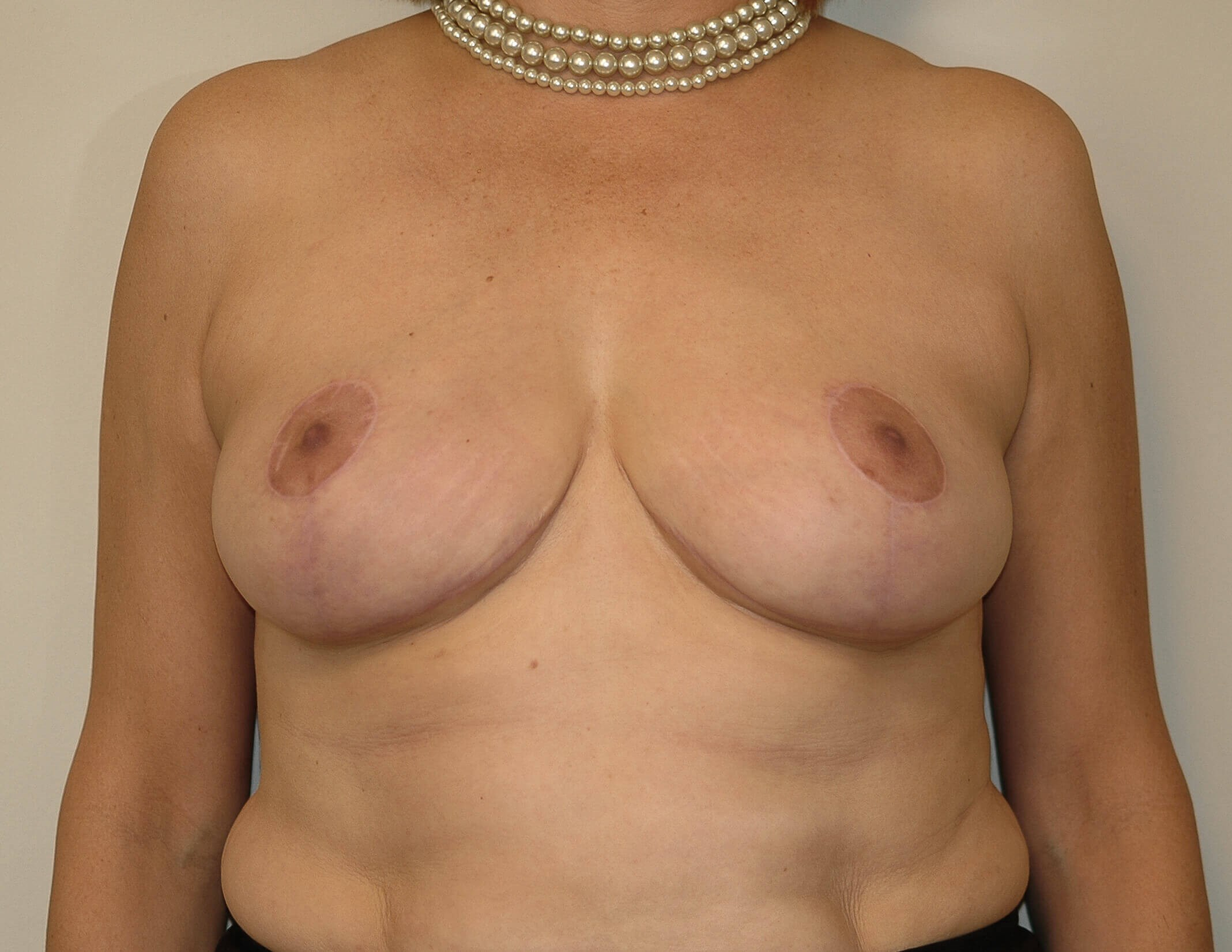 Mastopexy Front View After