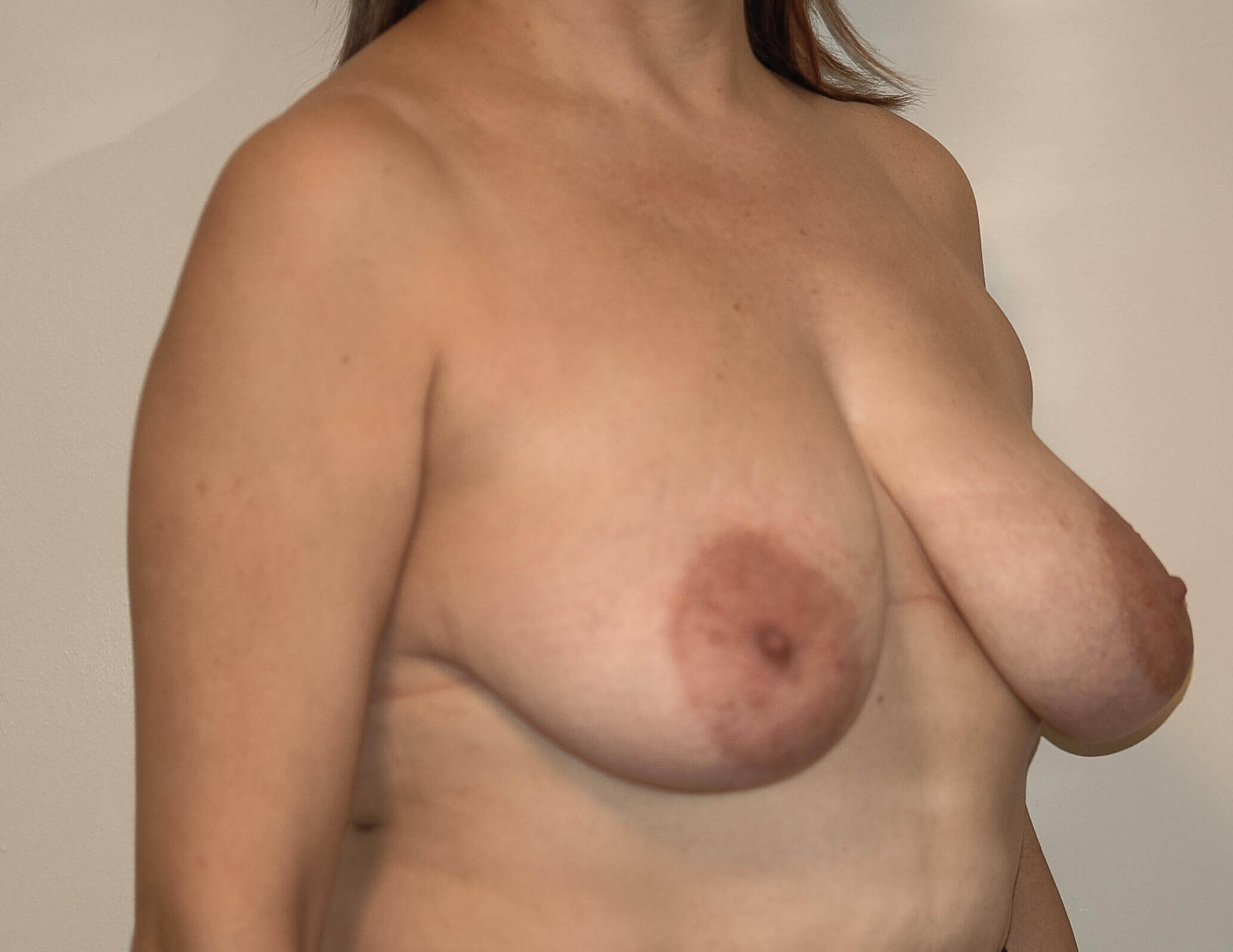 Mastopexy Right Quarter View Before