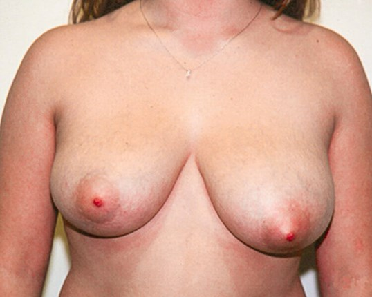 Mastopexy Front View Before