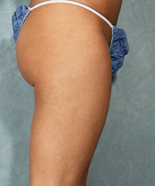 Lipo thighs, Side View After