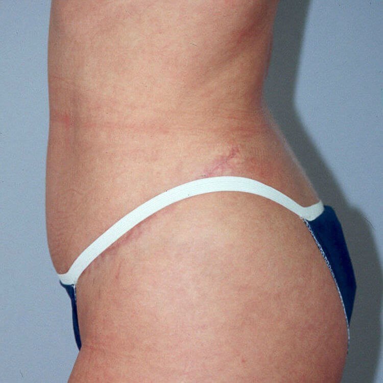 Tummy Tuck, Left Side View After