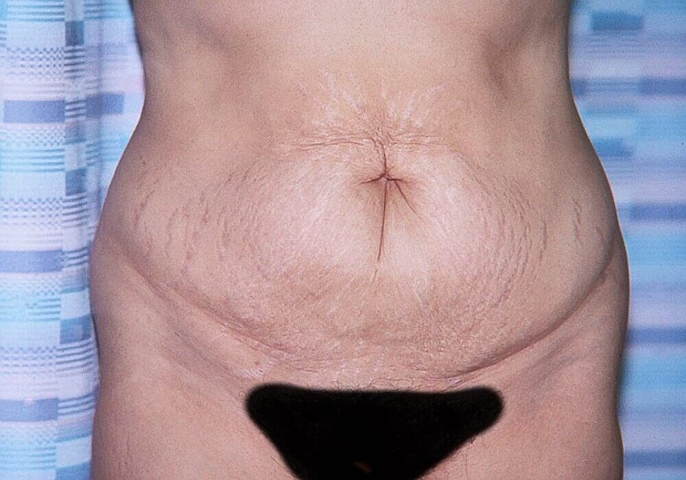 Tummy Tuck, Anterior View Before