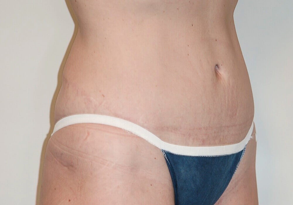 Tummy Tuck, Right Quarter View After