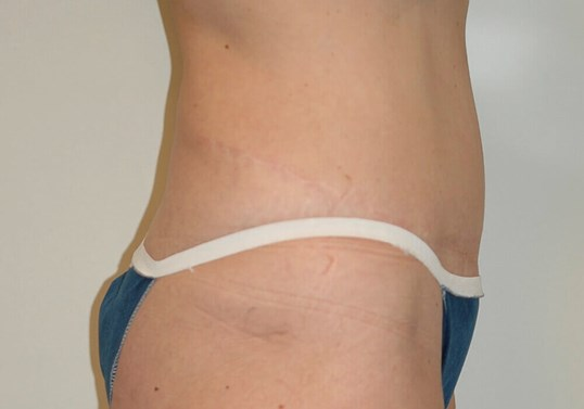 Tummy Tuck, Right Lateral View After