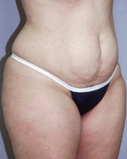 Tummy Tuck, Right Quarter View Before