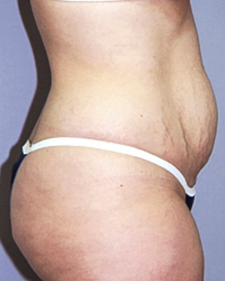 Tummy Tuck, Right Lateral View Before