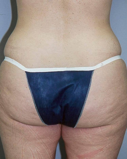 Tummy Tuck, Posterior View Before
