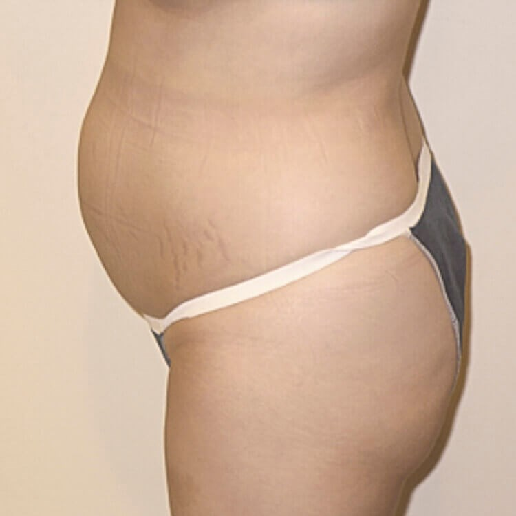 Tummy Tuck, Left Side View Before