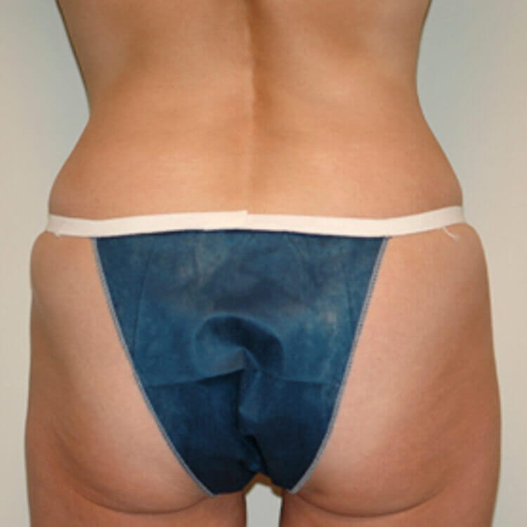 Tummy Tuck, Posterior View After
