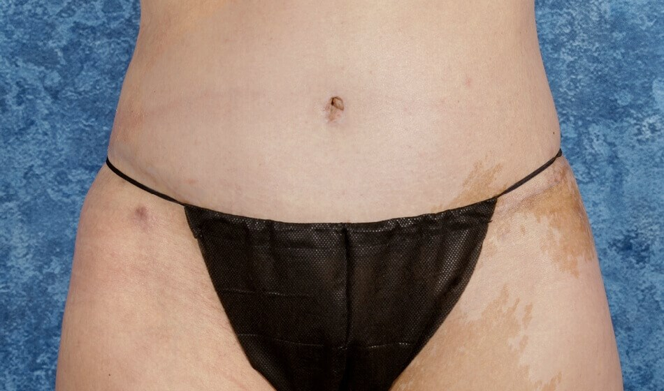 Tummy Tuck, Anterior View After