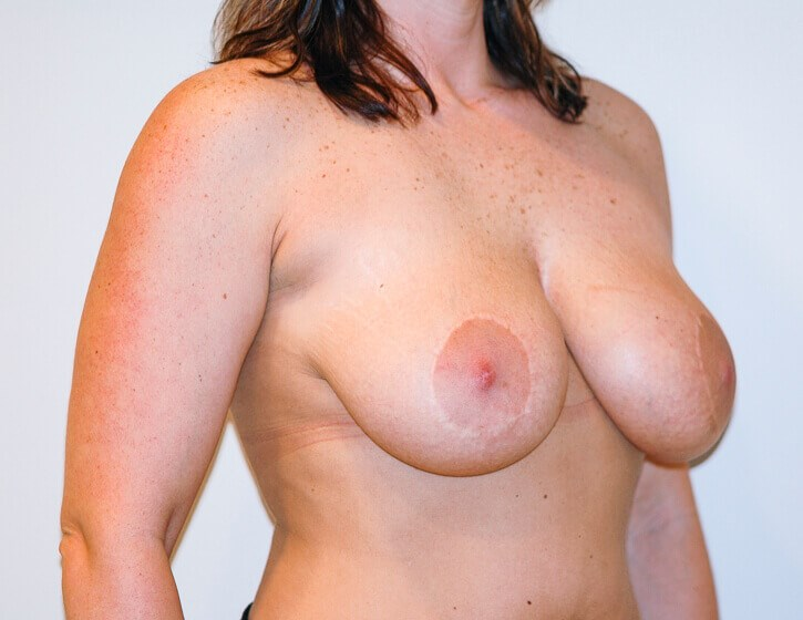 Breast Lift Right Quarter View Before