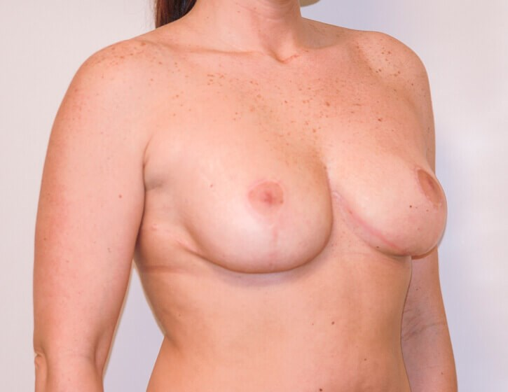 Breast Lift Right Quarter View After
