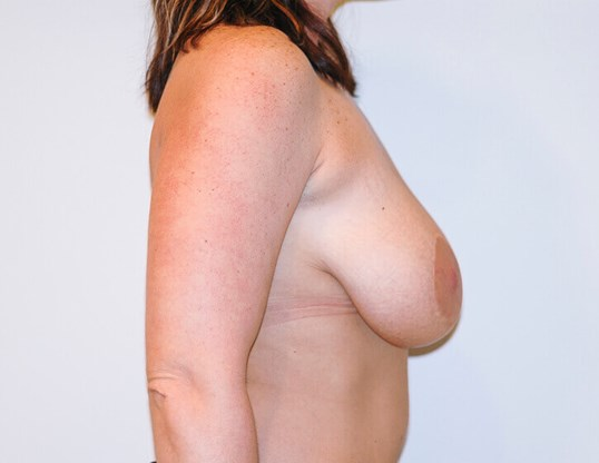 Breast Lift Right Side View Before
