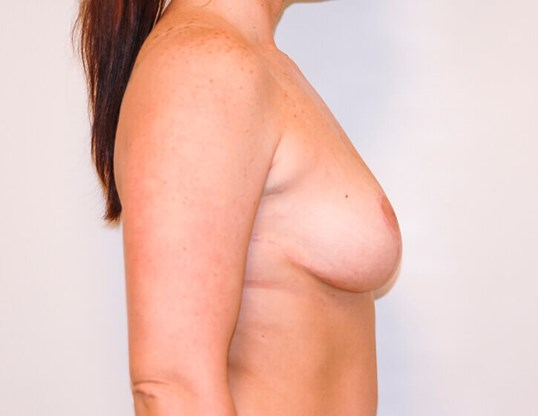 Breast Lift Right Side View After