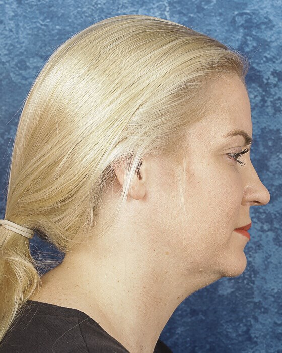 Kybella Side View Before