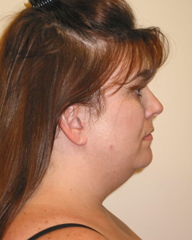 Neck Lipo, Side View Before