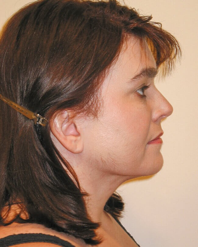 Neck Lipo, Side View After