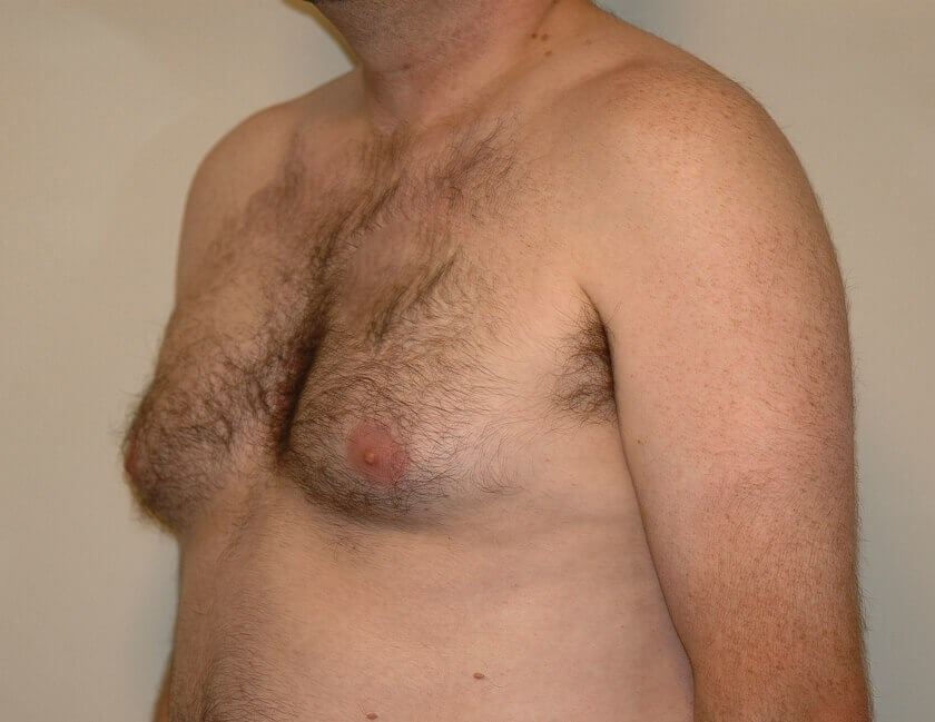 Gynecomastia (Man Boob) Lipo Before