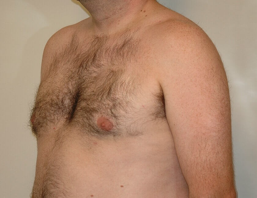 Gynecomastia (Man Boob) Lipo After