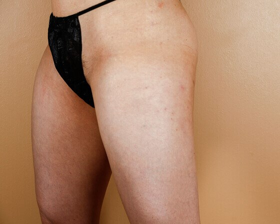 Lipotherme of Outer Thighs After