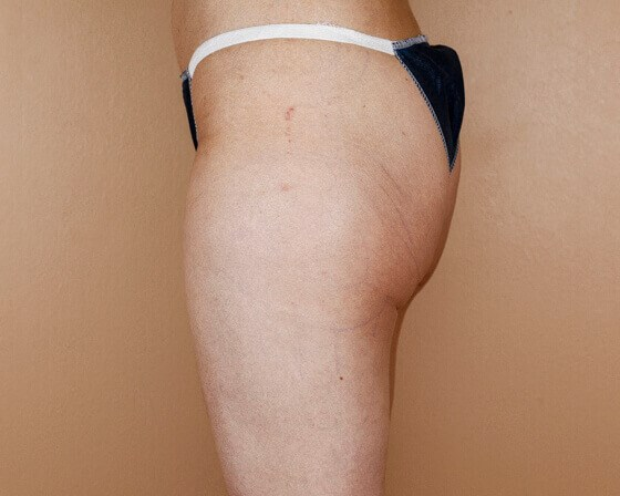 Lipotherme of Outer Thighs Before