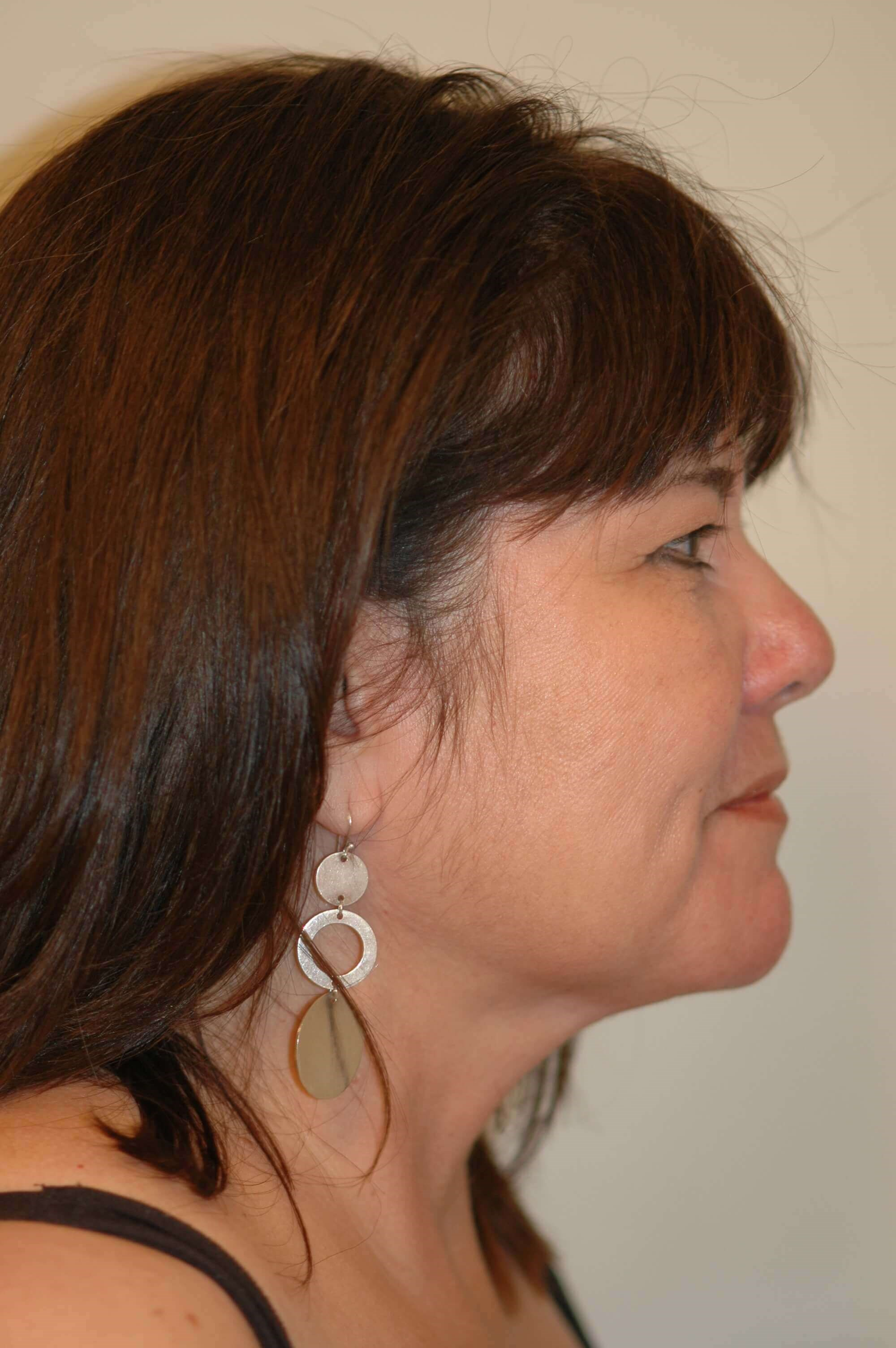 Neck Liposuction Side View After