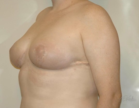 Breast Reduction Quarter View After