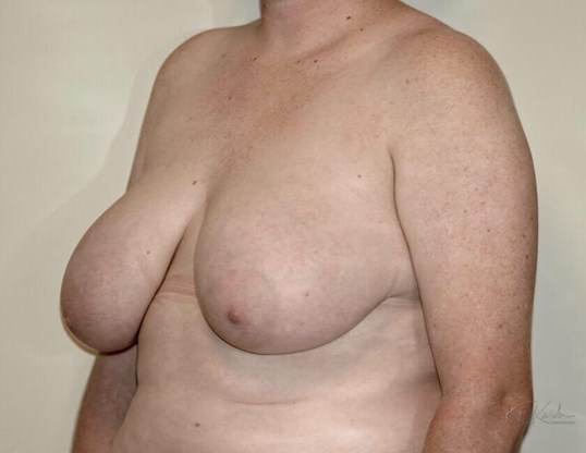 Breast Reduction Quarter View Before
